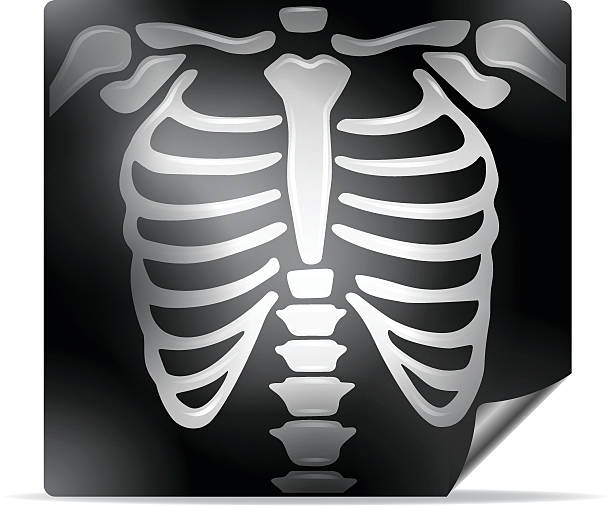 X ray clipart black and white 7 » Clipart Station.
