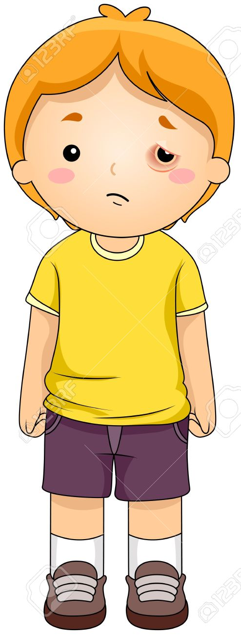Illustration Of A Kid With A Black Eye Stock Photo, Picture And.