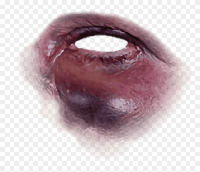 Free Png Download Black Eye Bruise Png Images Background.