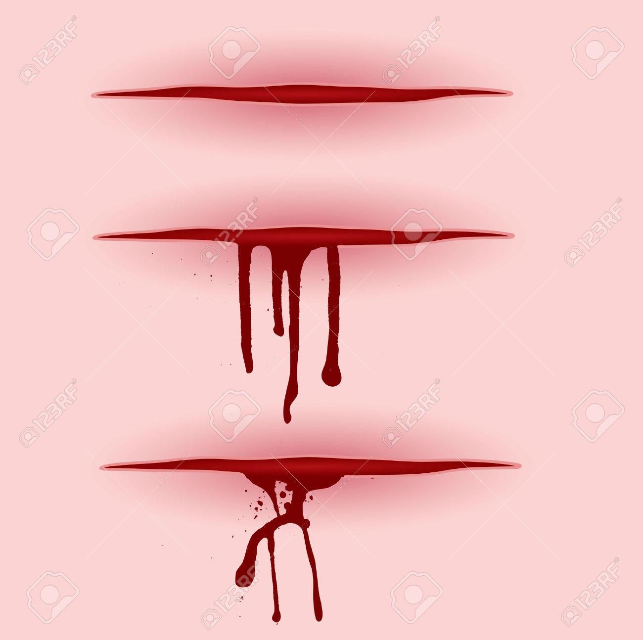 how to stop bleeding finger deep cut