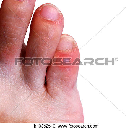 Stock Photography of Blister on little toe k10352510.