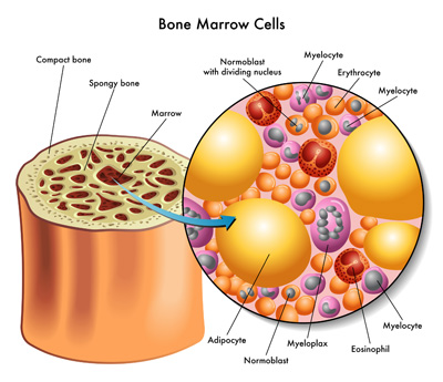 Bone Marrow Transplant.