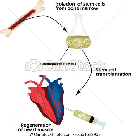 Stem cells from bone marrow is used to regenerate the cardiac muscle.  Infographics. Vector illustration.