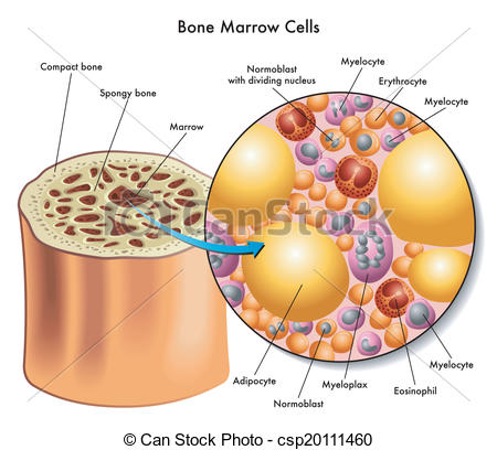 Bone marrow harvest clipart #14