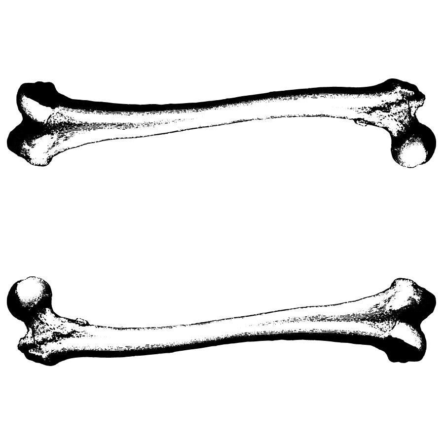 Human Broken Bones Clipart.