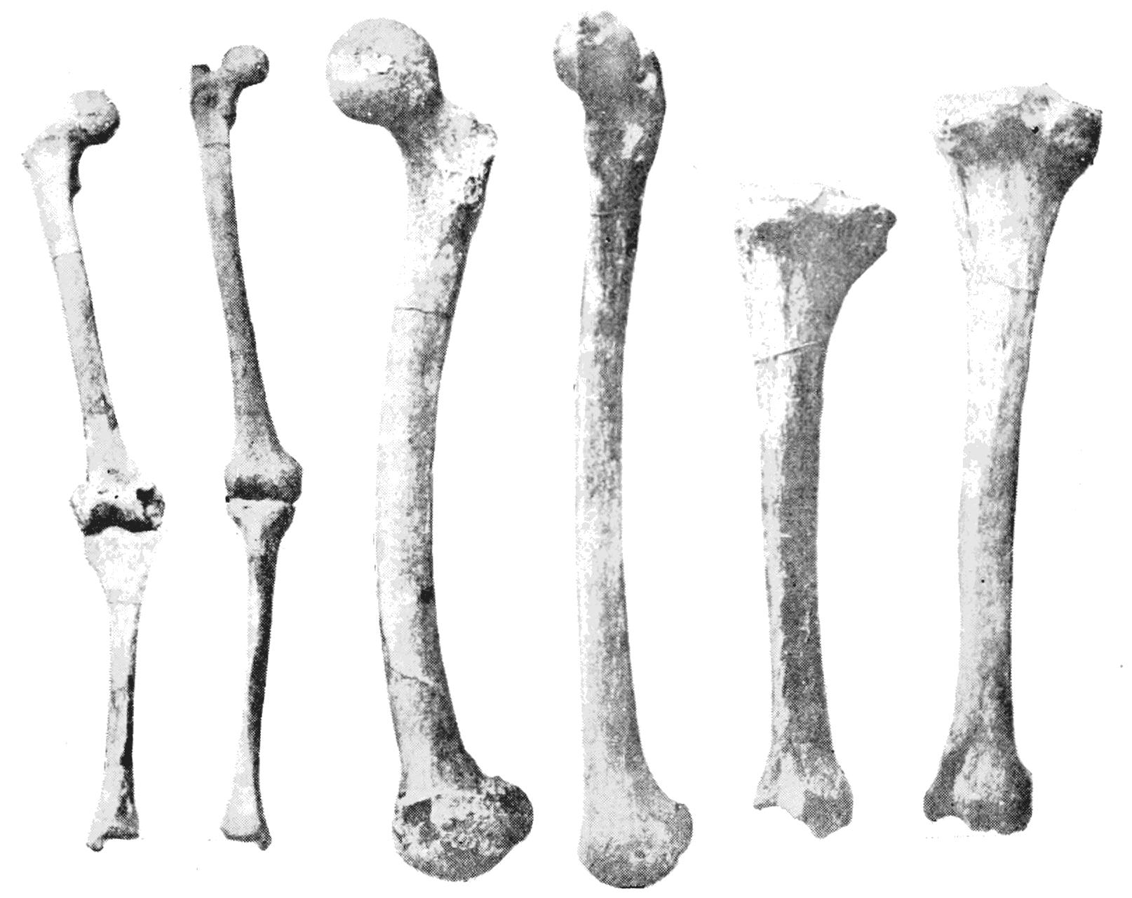 File:PSM V44 D639 Showing leg bones.png.