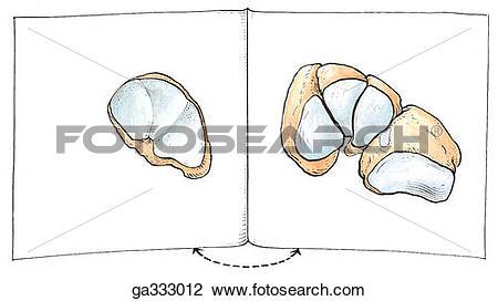 Clip Art of Cuneonavicular, cubonavicular, and tarsometatarsal.