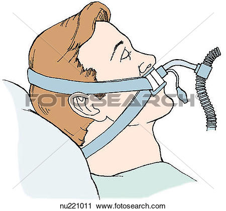 Clipart of Patient being administered oxygen via endotracheal tube.