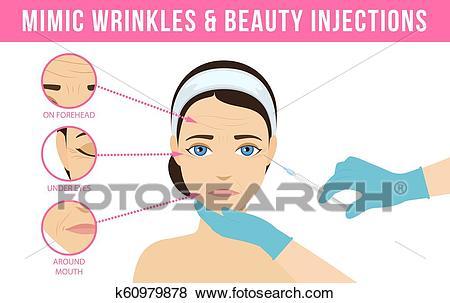 Cosmetic procedures botox Clip Art.