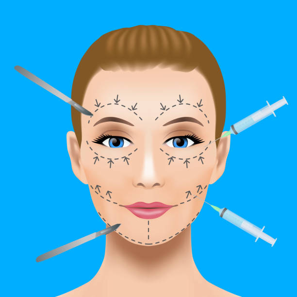 Best Botox Injection Illustrations, Royalty.