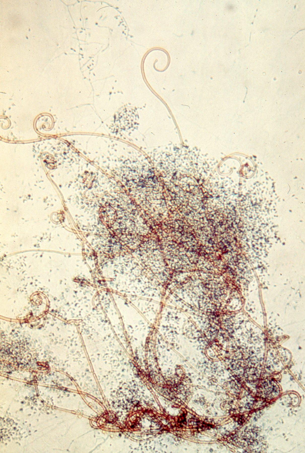 Auxarthron (Myxotrichium) umbrinum.