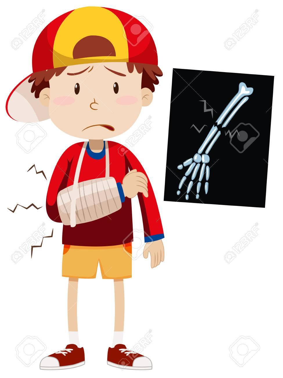 Sad boy with broken arm illustration.