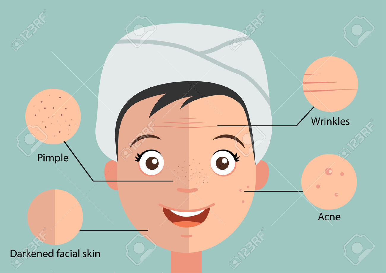 336 Scar Face Stock Vector Illustration And Royalty Free Scar Face.