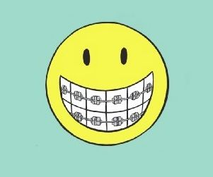 Orthodontics Clip Art Teeth Brace.