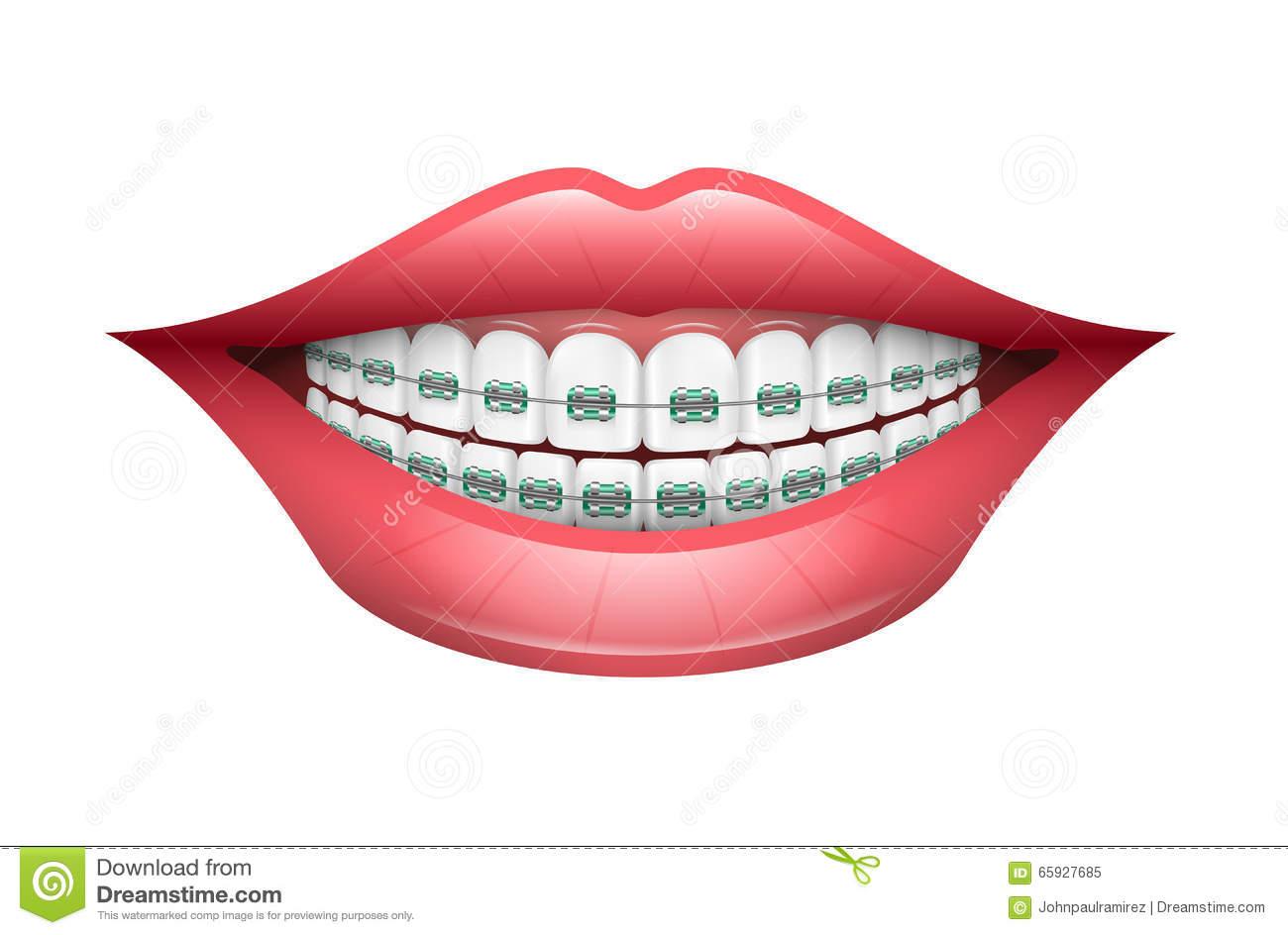 Orthodontics Clip Art Teeth Brace.