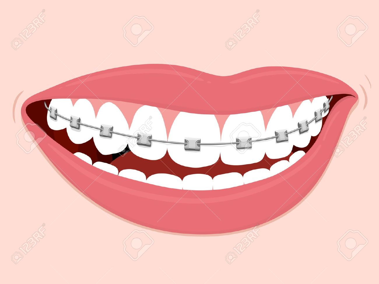 Clipart brace smile no background.