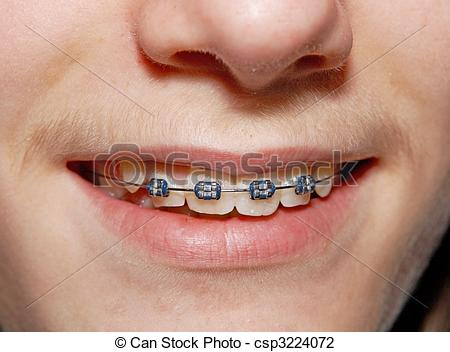 Stock Photo of Braced smile.