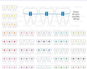 braces.