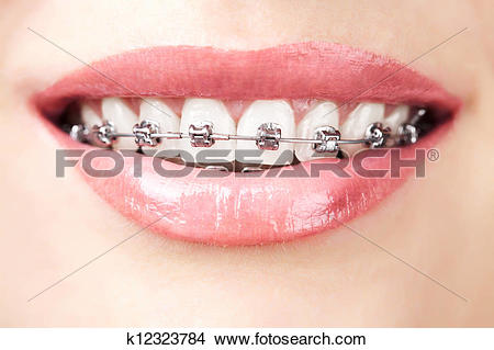 Braces teeth Stock Photo Images. 4,703 braces teeth royalty free.