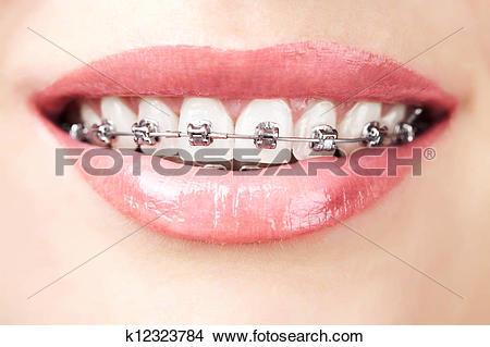 Braces teeth Stock Photo Images. 4,703 braces teeth royalty free.