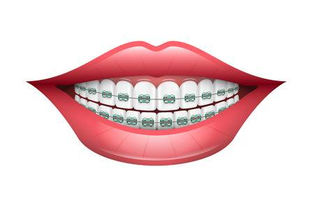 2,332 Braces Smiling Stock Vector Illustration And Royalty Free.