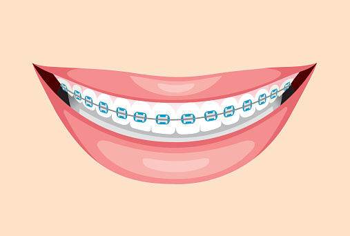 Teeth friend braces clipart.