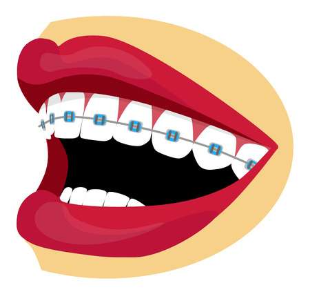 9,585 Orthodontic Stock Vector Illustration And Royalty Free.