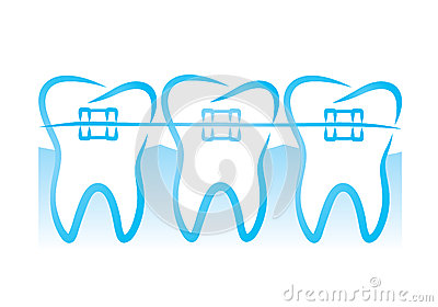Braces Stock Illustrations.