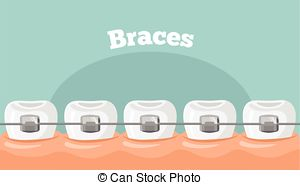 Braces Illustrations and Clip Art. 2,419 Braces royalty free.