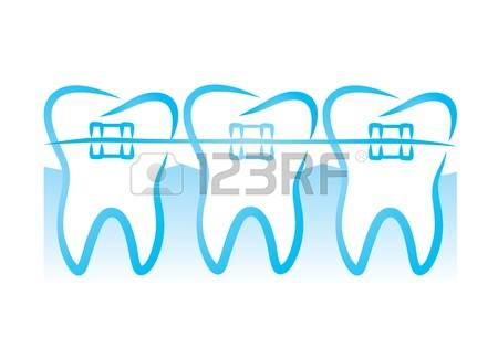1,372 Braces Smile Cliparts, Stock Vector And Royalty Free Braces.