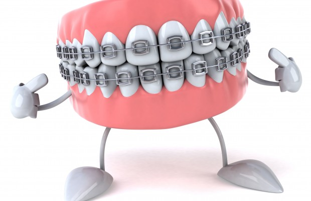 Mouth with Braces Clip Art.