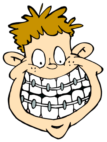 Free Braces Cliparts, Download Free Clip Art, Free Clip Art.