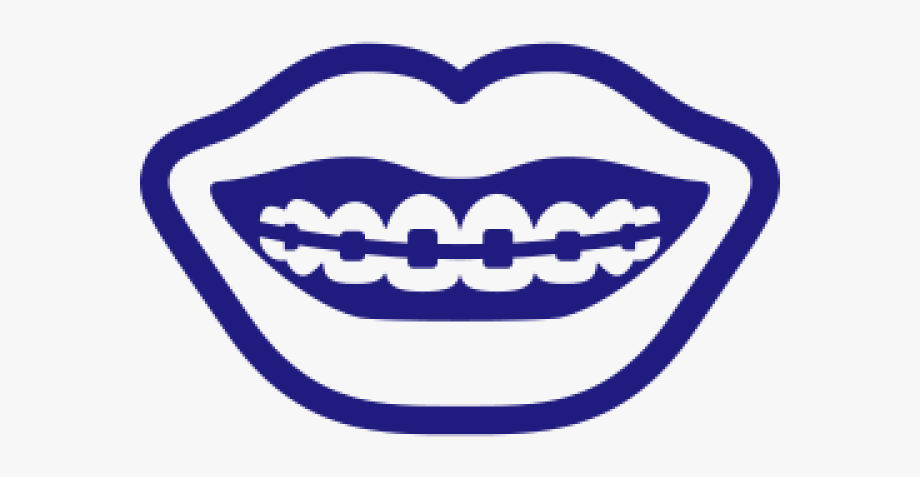 Smile With Braces Clipart , Transparent Cartoon, Free.