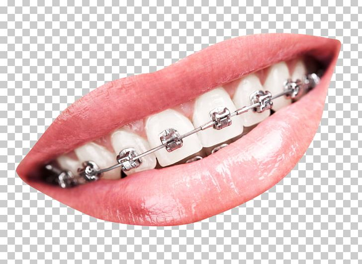 Tooth Dental Braces Dentistry PNG, Clipart, Braces, Cosmetic.