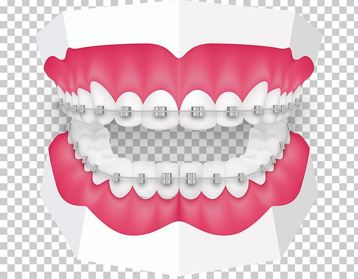 Tooth Orthodontics Dentistry Dental Braces Oral Hygiene PNG, Clipart.