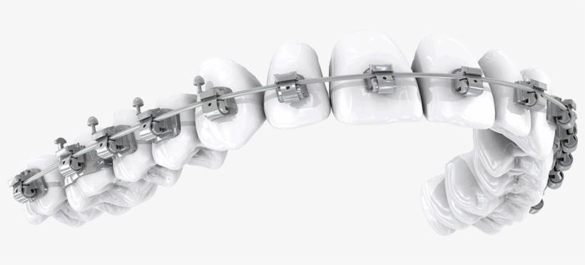 Dental braces PNG Images.