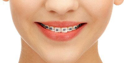 Braces Png (108+ images in Collection) Page 1.