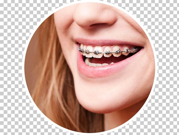 Dental Braces Dentistry Orthodontics Oral Hygiene PNG, Clipart.