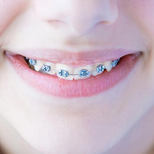 Orthodontic Treatment.