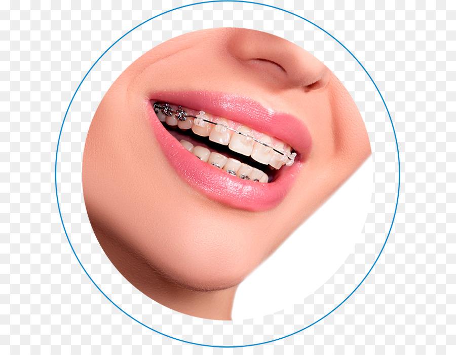 Dental Braces Lip png download.