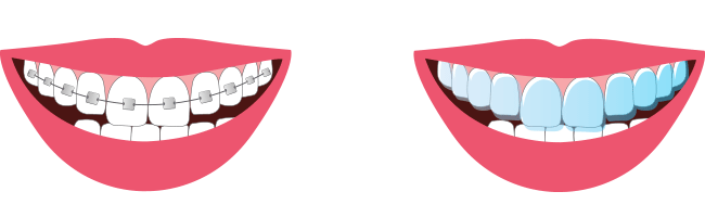 Braces Png (108+ images in Collection) Page 2.