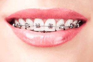 How to keep your teeth whiter with braces.