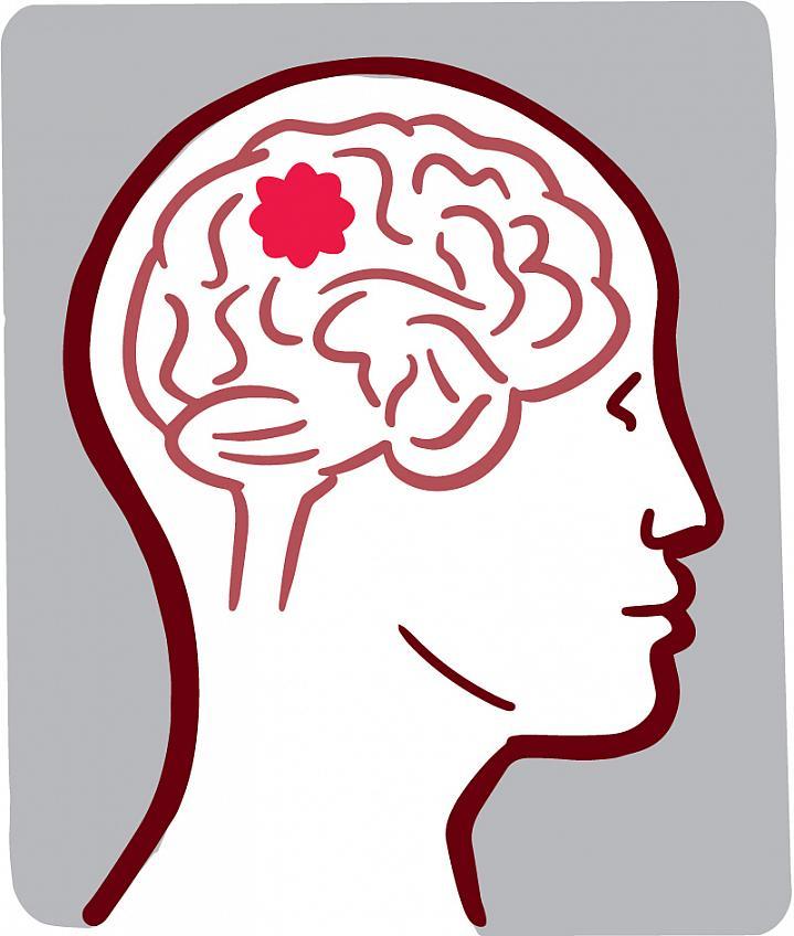 Brain Tumor Drawing.