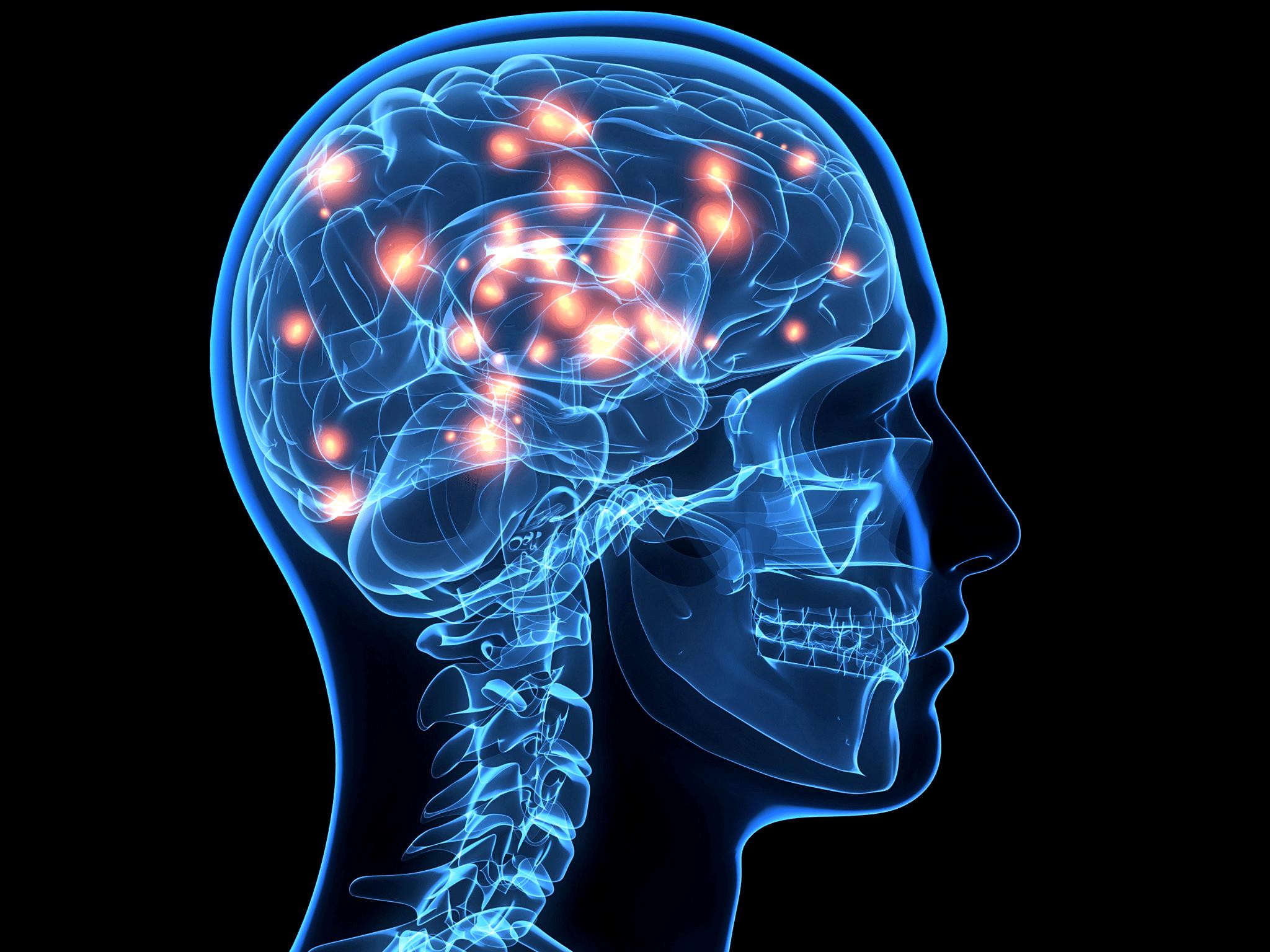 Medical,Head,Organ,Brain,Medical imaging,Joint,Organism,X.