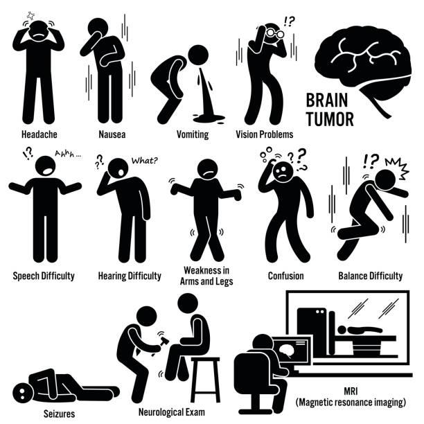 Best Brain Tumour Illustrations, Royalty.
