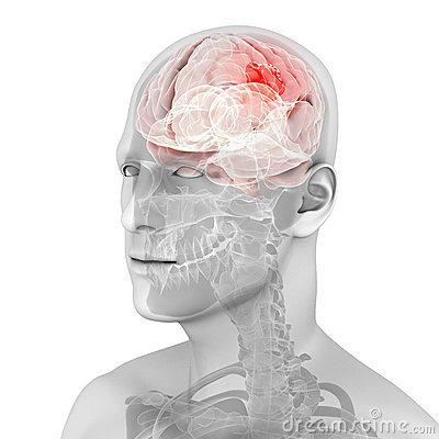 Highlighted Brain Tumor.