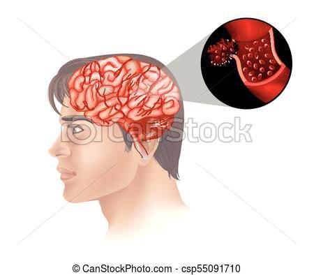 Brain cancer in human.