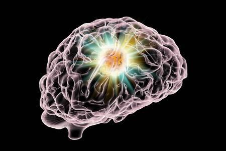 468 Brain Tumour Stock Vector Illustration And Royalty Free Brain.