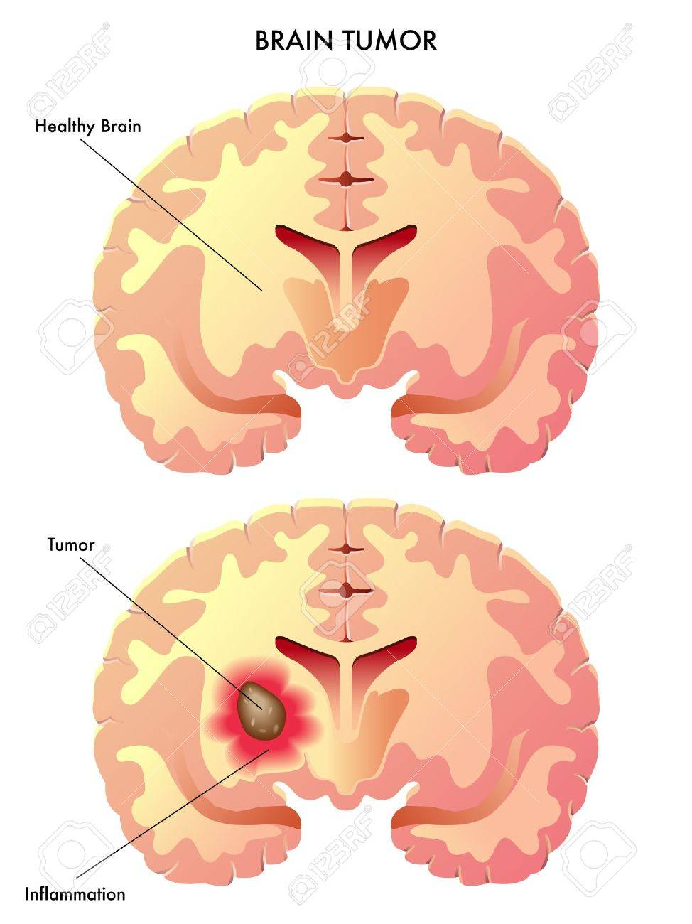 brain tumor.