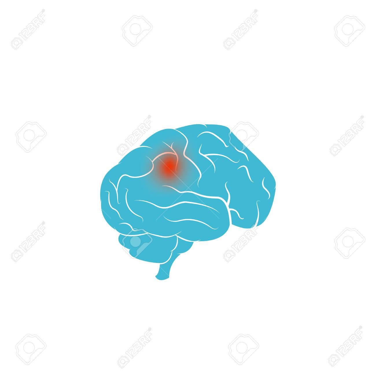 Brain tumor vector design.